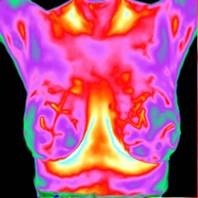 Thermography Breast Imaging